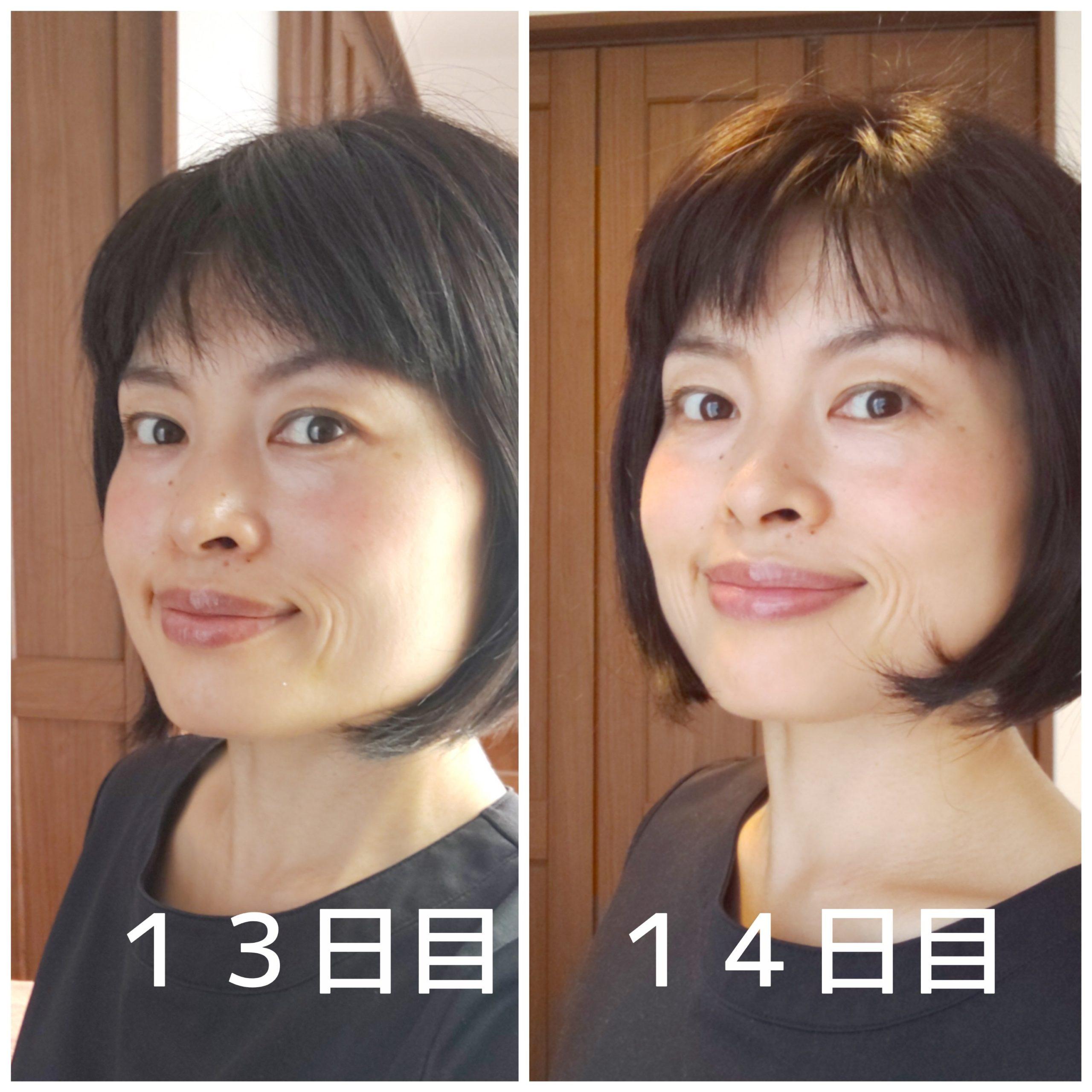 内出血後14日目の顔写真