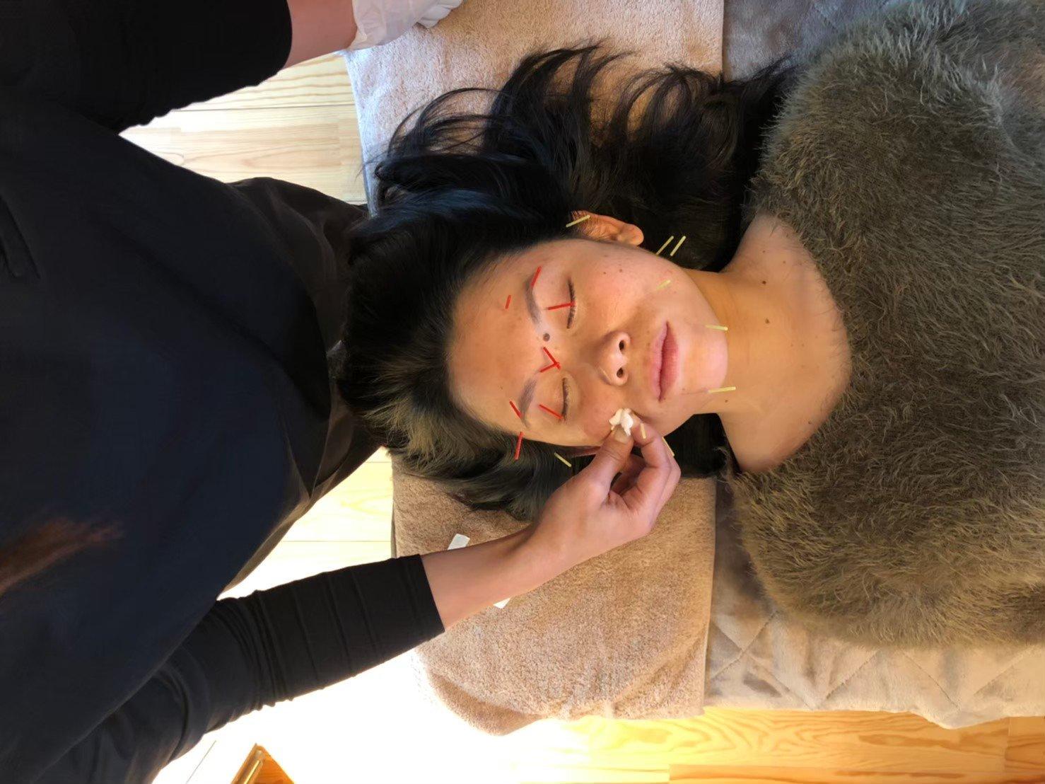 美容鍼施術様子